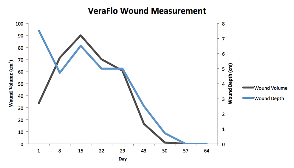 VeraFlo Wound Measurement