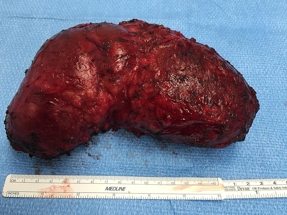 chronic expanding hematoma in the chest We describe a patient with chronic expanding hematoma that was pathologically  confirmed by  52 years previously had been examined a by chest radio.