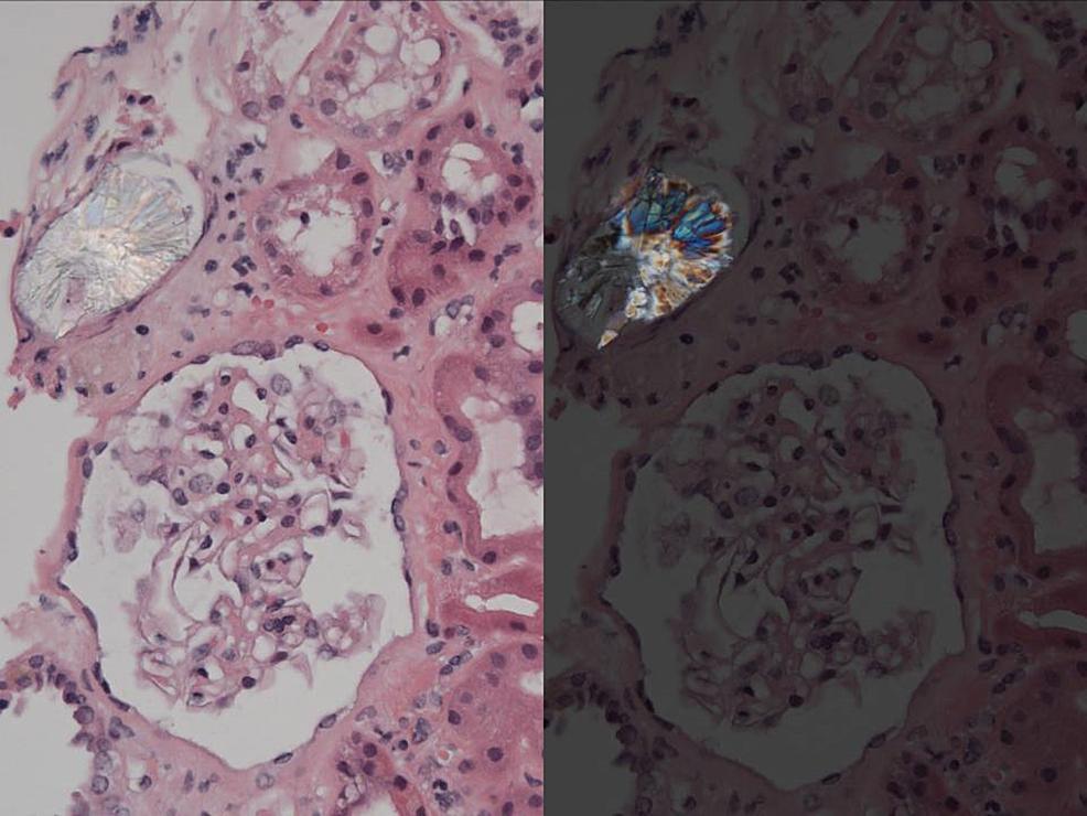 Renal-Histology