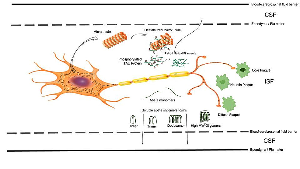 Aβ-and-phospho-tau-from-neurons-to-CSF