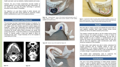 Content_card_ab67bf80694211e6934f216e300895c6-cureus_poster_award_-_sharma_-_mandible