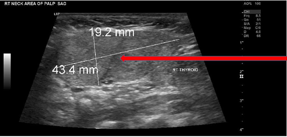 Ultrasound-image-of-the-neck