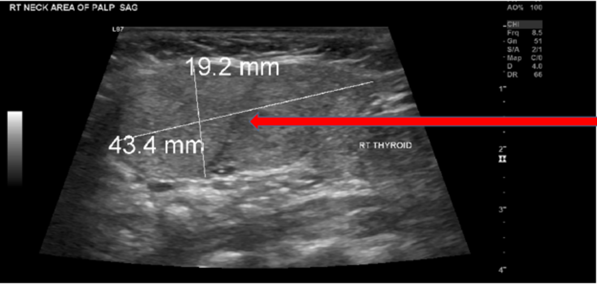 Cureus Benign Ectopic Thyroid Tissue In The Neck A Case Report
