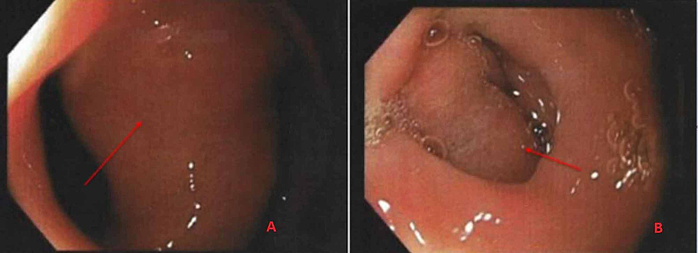 Esophagogastroduodenoscopy-shows-a-large-5-cm-polypoidal-mass-with-a-stalk-in-the-duodenal-bulb.