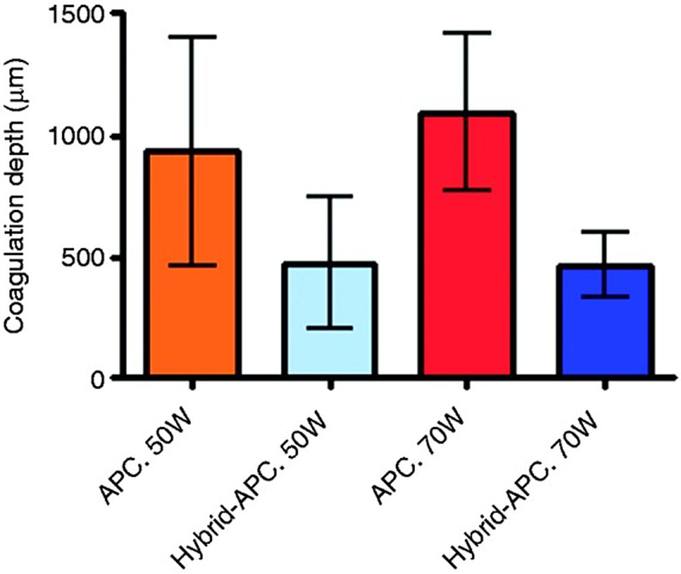 Histologic-quantification-of-the-coagulation-depth-