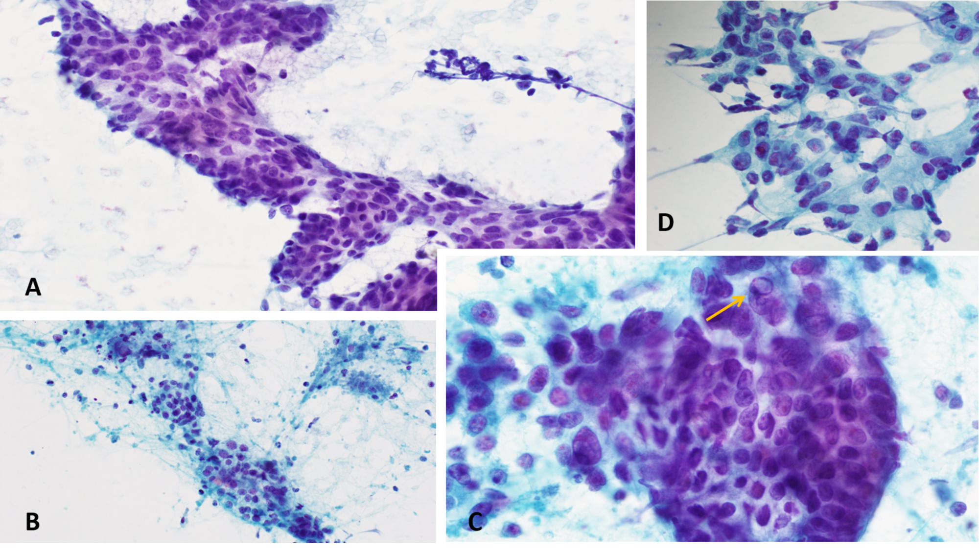 Cureus Colon Cancer Metastatic To The Thyroid Gland In The Setting Of Pathologically Diagnosed Papillary Thyroid Cancer A Review And Report Of A Case