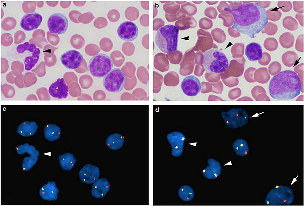 Combined-morphologic-FISH-analysis-shows-MYC-rearrangement-in-small-mature-chronic-lymphocytic-leukemia-cells-and-large-prolymphocytes