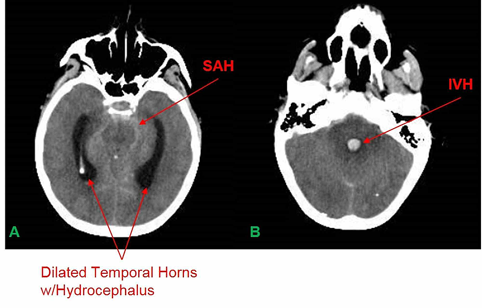 A.-CTH-revealing-SAH-and-dilated-temporal-horns-w/hydrocephalus.-B.-CTH-revealing-IVH-in-the-4th-ventricle