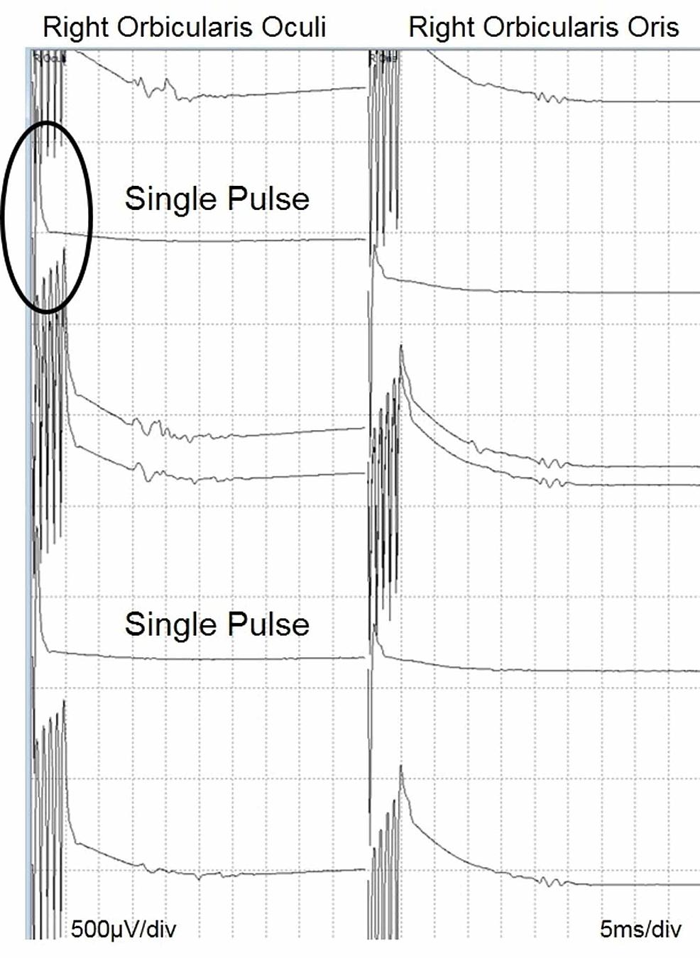 Co-bulb-MEP-from-facial-nerve-–-circle-indicates-single-pulse-stimulation