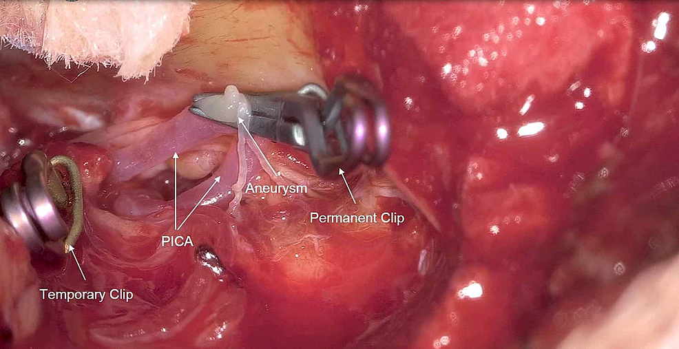 Permanent-clip-on-PICA-aneurysm