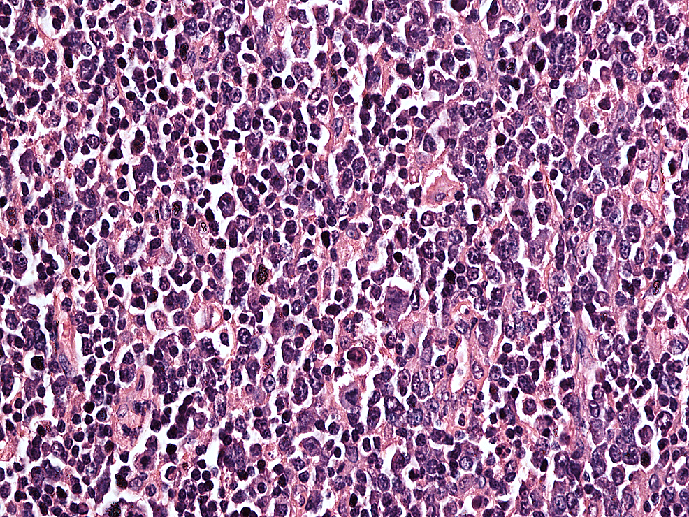 H-and-E-stained-slide-at-40-X-magnification,-tumor-cells-are-large-with-pleomorphic-nuclei-having-prominent-nucleoli