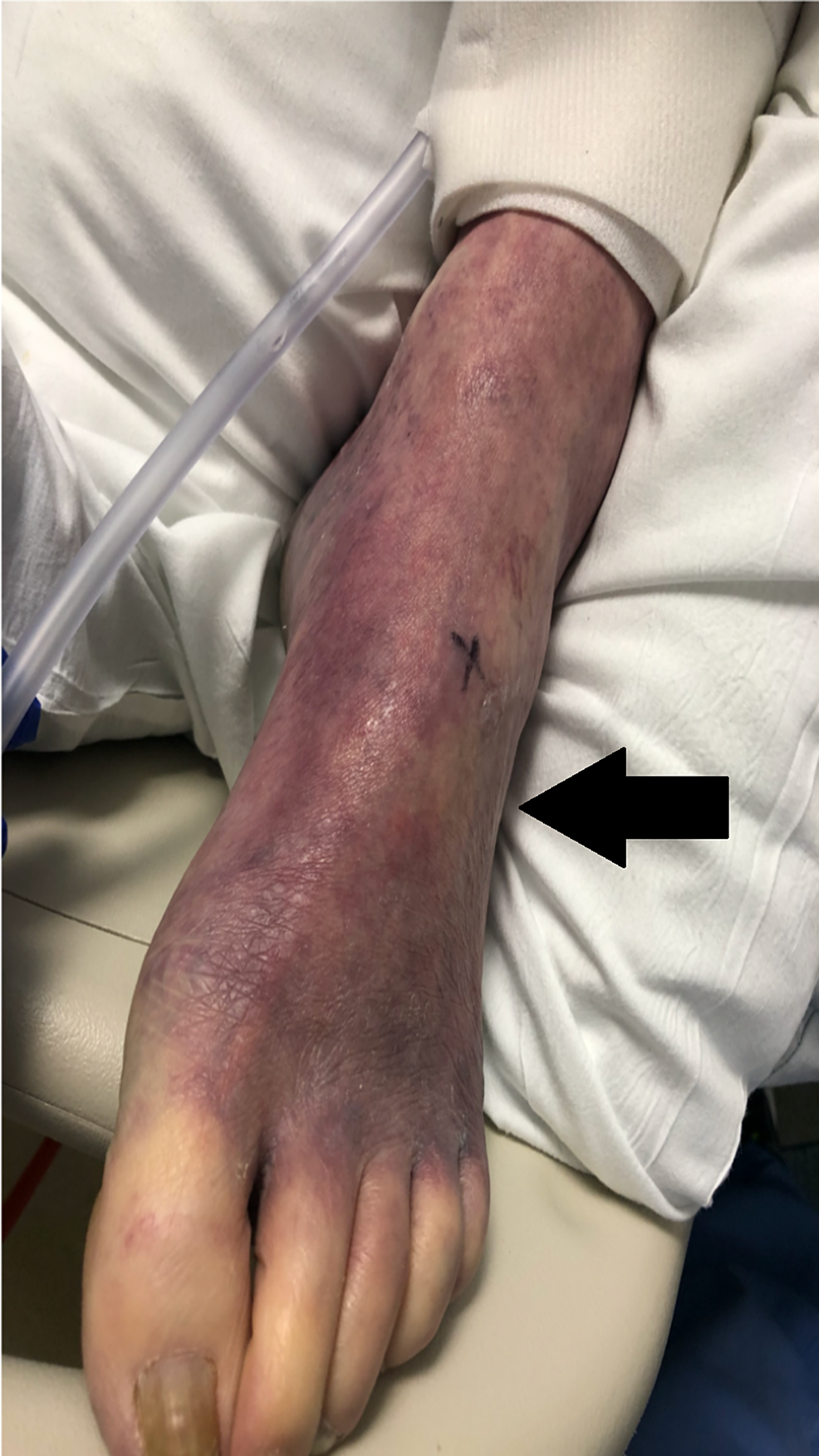 Peripheral-cyanosis---Ischemic-leg