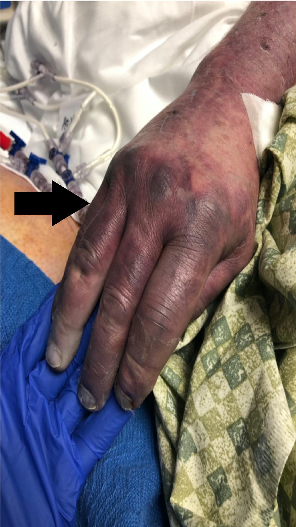 Peripheral-cyanosis---Ischemic-hand