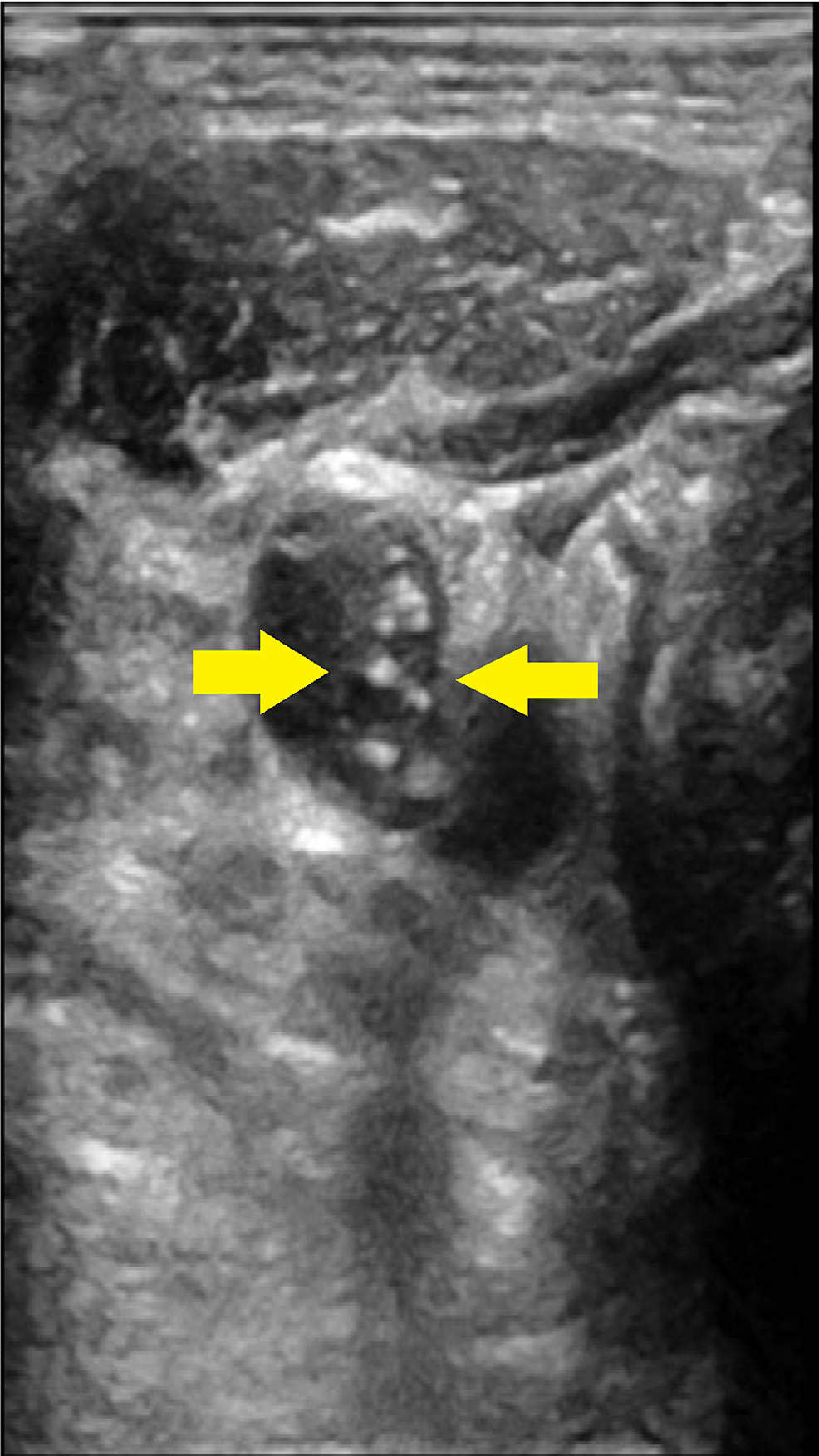 Right-internal-jugular-vein-(IJV)-thrombus