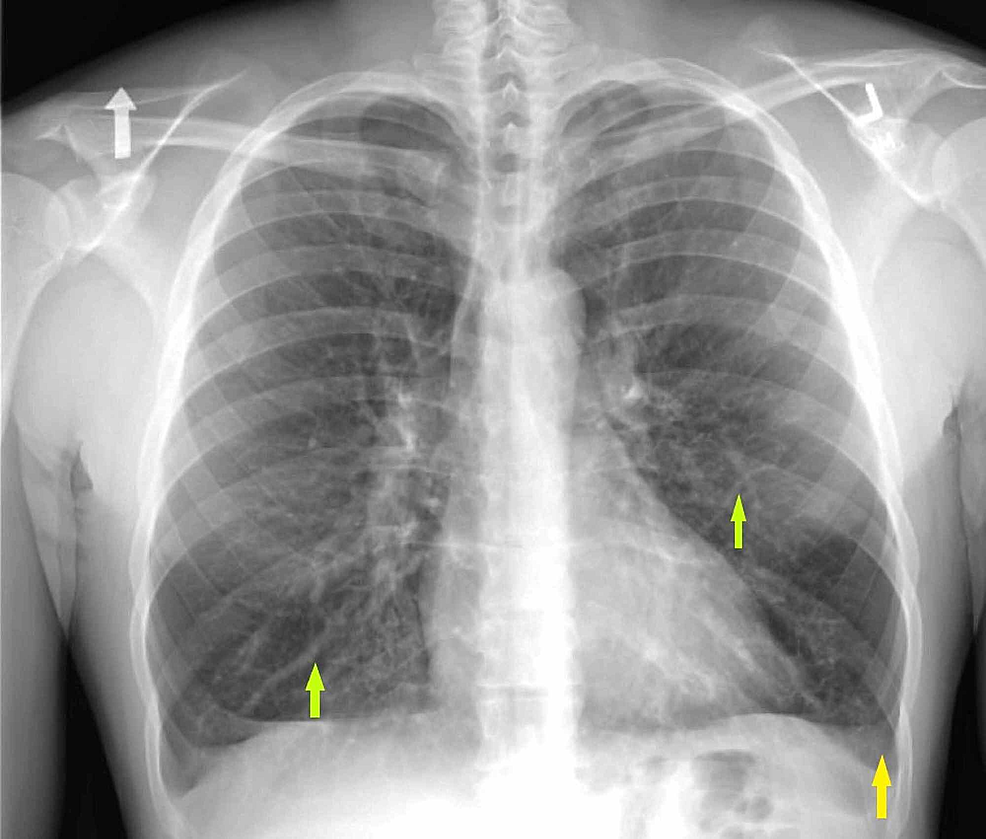 One-view-chest-radiograph