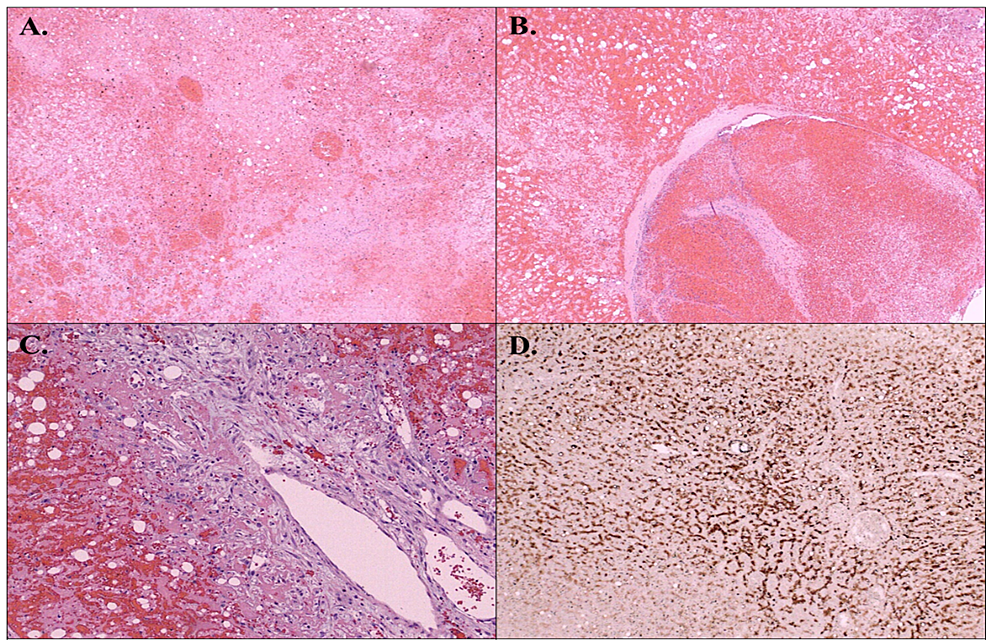 Microscopically,-an-infarcted,-hemorrhagic-mass-was-composed-of-cords-of-degenerated-epithelioid-cells-with-vacuolated-and-occasionally-lipid-laden-cytoplasm-(A)-A-large,-dilated-vessels-with-thrombi-(B)-and-papillary-endothelial-hyperplasia-were-demonstrated.-The-mass-was-surrounded-by-reactive-fibro--and-myofibroblastic-tissue-(C).-Epithelioid-cells-were-stained-positive-with-pan-keratin-CK-AE1/AE3-(D)-and-negative-with-CD117.