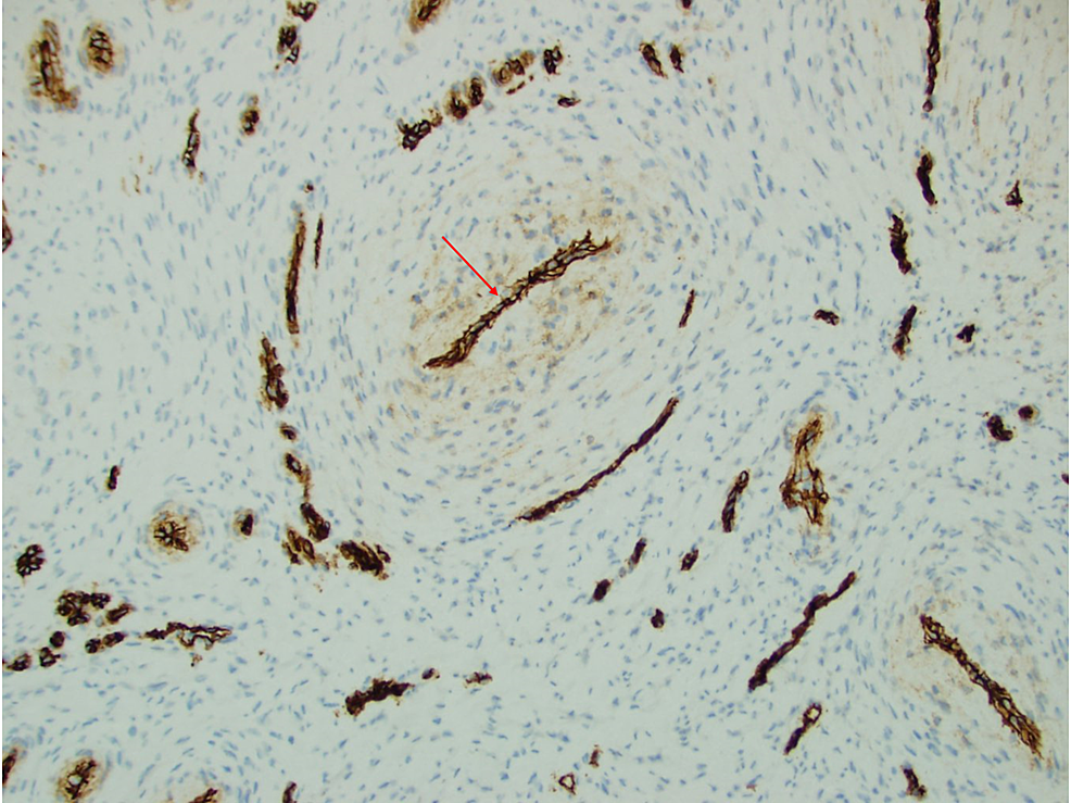 CD34-outlined-the-compressed-endothelial-cells-surrounded-by-spindle-cell-proliferation-in-a-concentric-pattern-