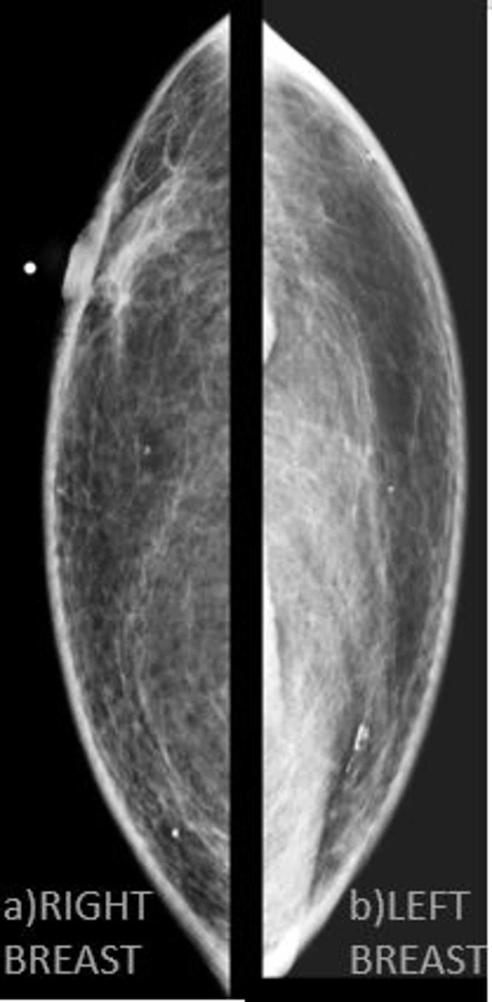 Mammography-of-the-patient