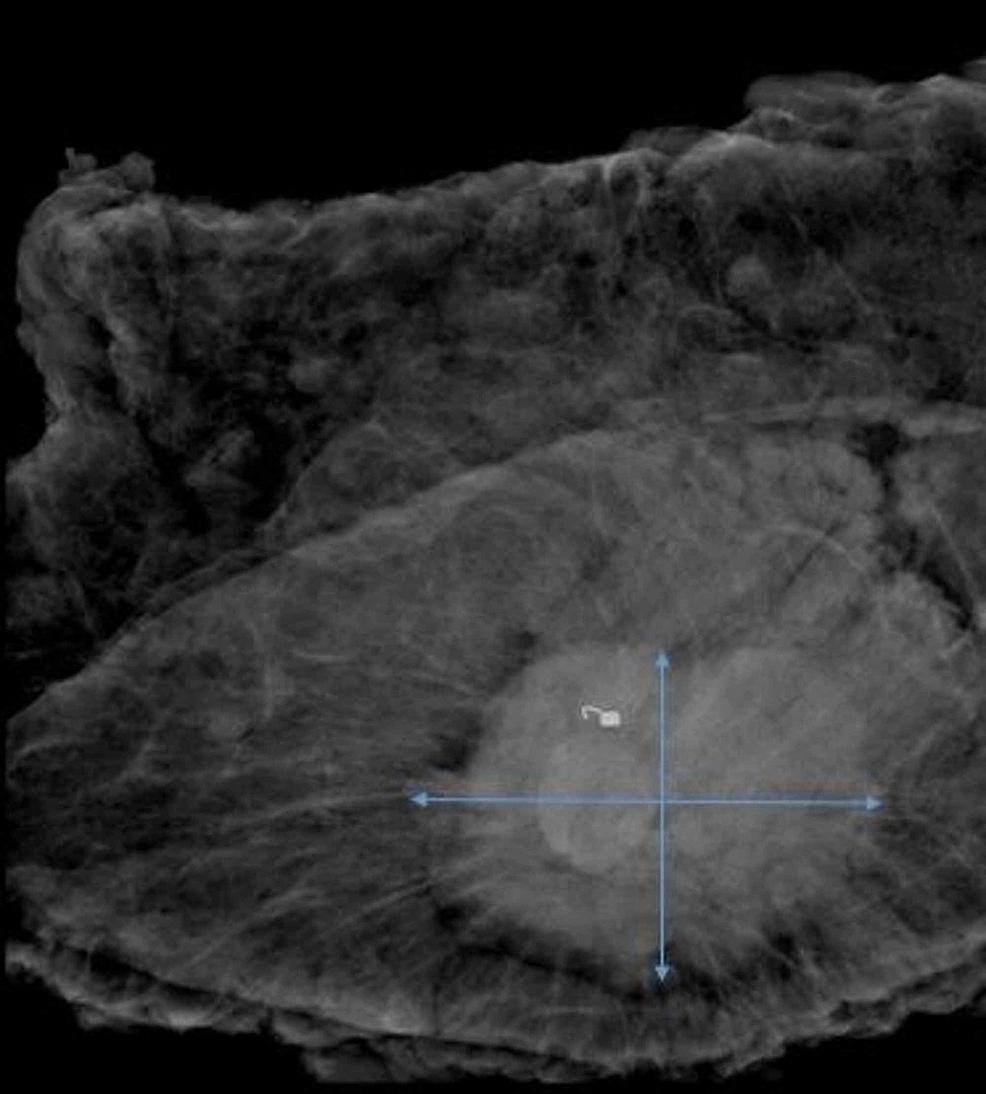 Left-breast-mastectomy-surgical-specimen