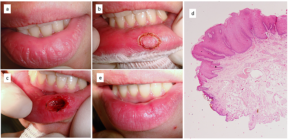Recurrent-white-lesion-of-lip-vermillion-(a);-preliminary-definition-of-safe-margins-of-excision-by-diode-laser-(b);-deep-surgical-wound-immediately-after-laser-excision-(c);-histological-examination-leading-to-the-diagnosis-of-frictional-keratosis-(H&E,-X2)-(d);-complete-mucosal-healing-14-days-later-without-cosmetic-complications-(e)