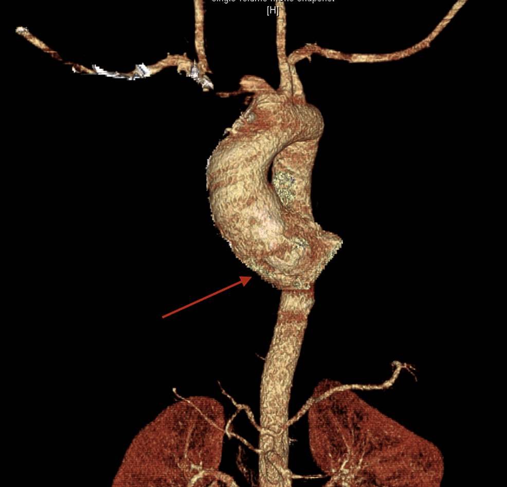 Visual-Three-Dimensional-Reconstruction-of-the-Aorta.