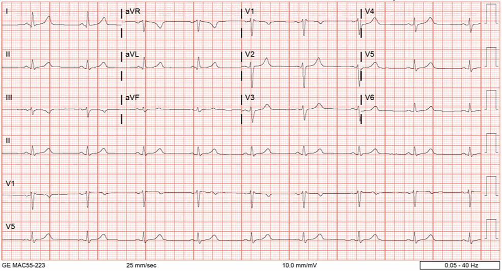 EKG-demonsrating-sinus-bradycardia
