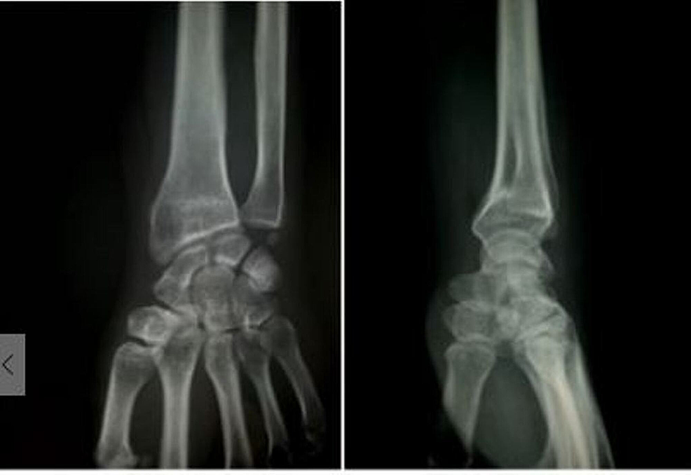 Anteroposterior-and-lateral-x-ray-of-wrist-after-six-months-follow-up-showing-good-union