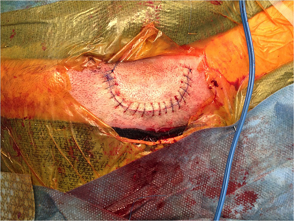 The-wound-is-closed-in-a-standard-two-layer-fashion,-and-the-resulting-wound-shows-no-prominence-of-the-valve-body-through-the-skin.