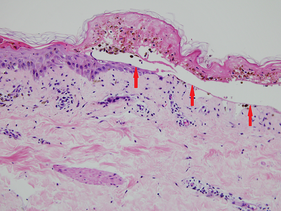 Red-arrows-showing-full-thickness-epidermal-necrosis-and-subepidermal-bullae