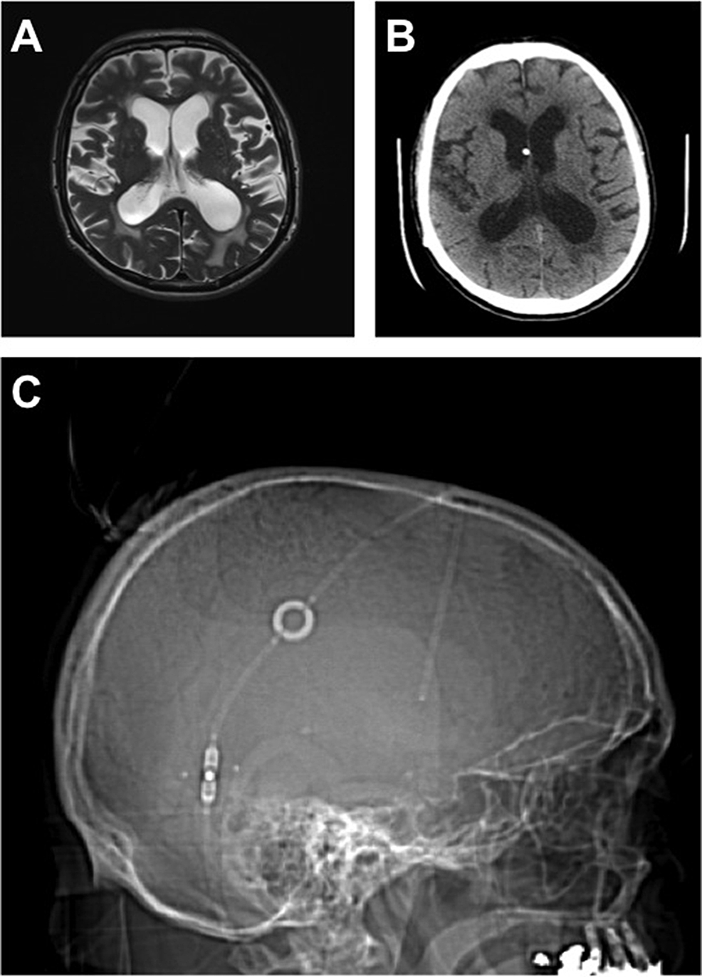 lateral-scout-images-from-follow-up-CT-Scans-demonstrated-stable-vertical-position-of-the-HV-valve-in-all-patients.