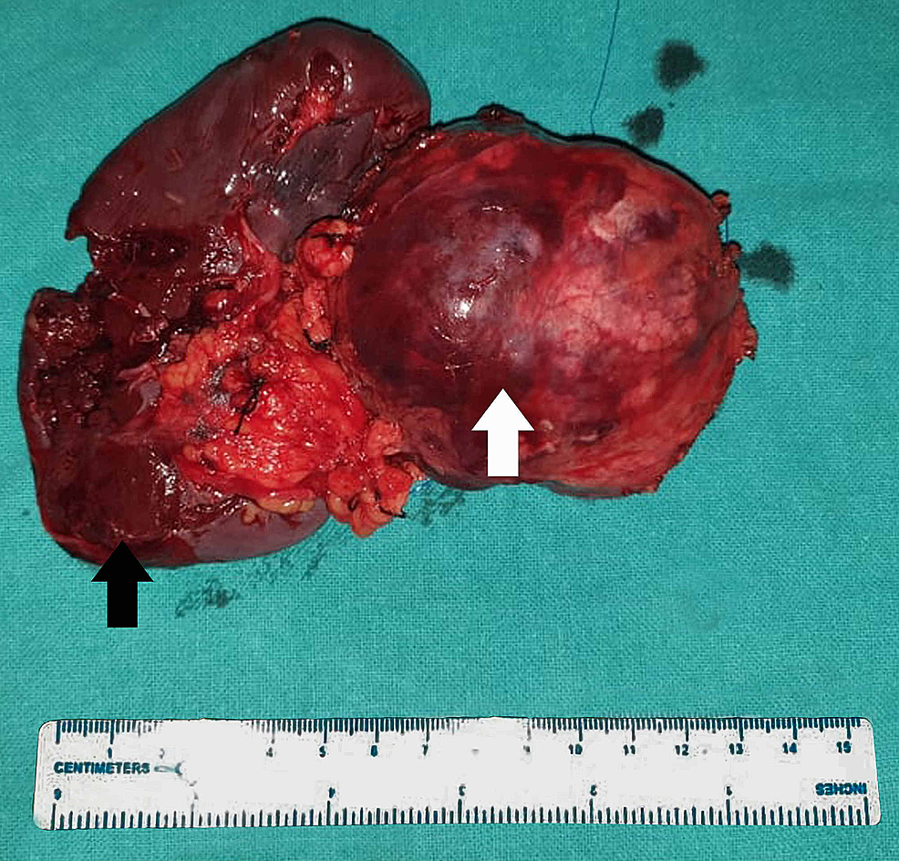Resected-specimen-with-distal-pancreas-(white-arrow)-and-spleen-(black-arrow)
