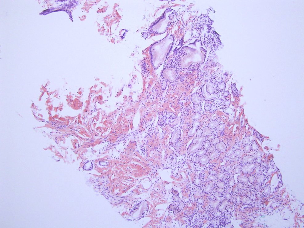 Congo-Red-Staining,-not-under-polarized-light-revealing-amyloid-deposition-in-small-bowel