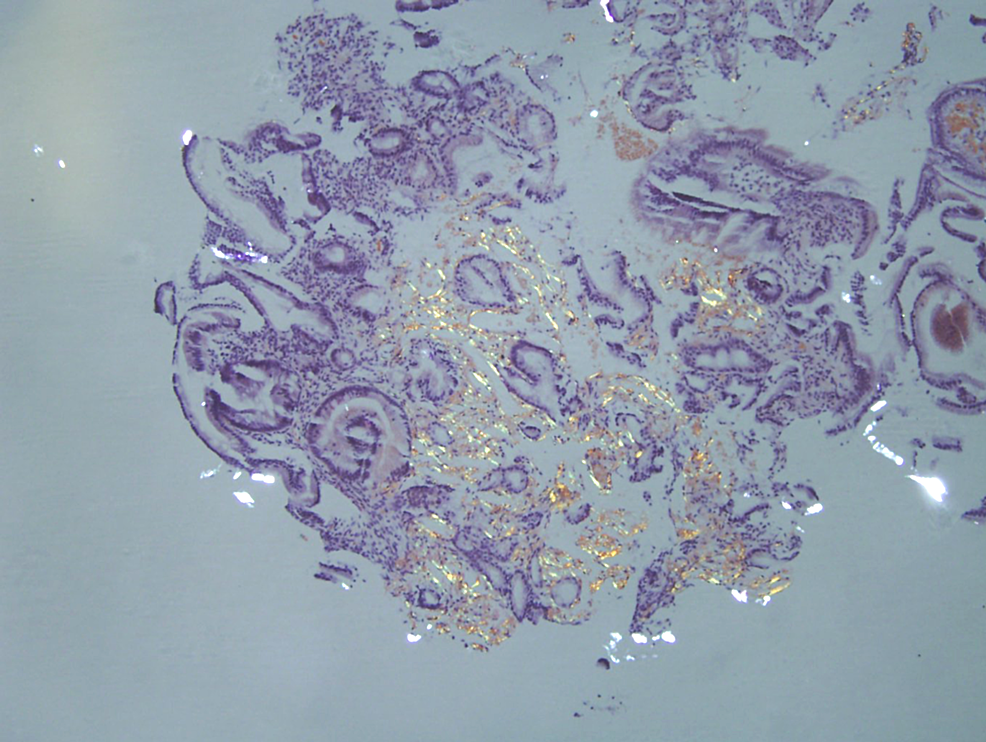 Congo-red-staining-under-polarized-light-revealing-small-bowel-amyloid