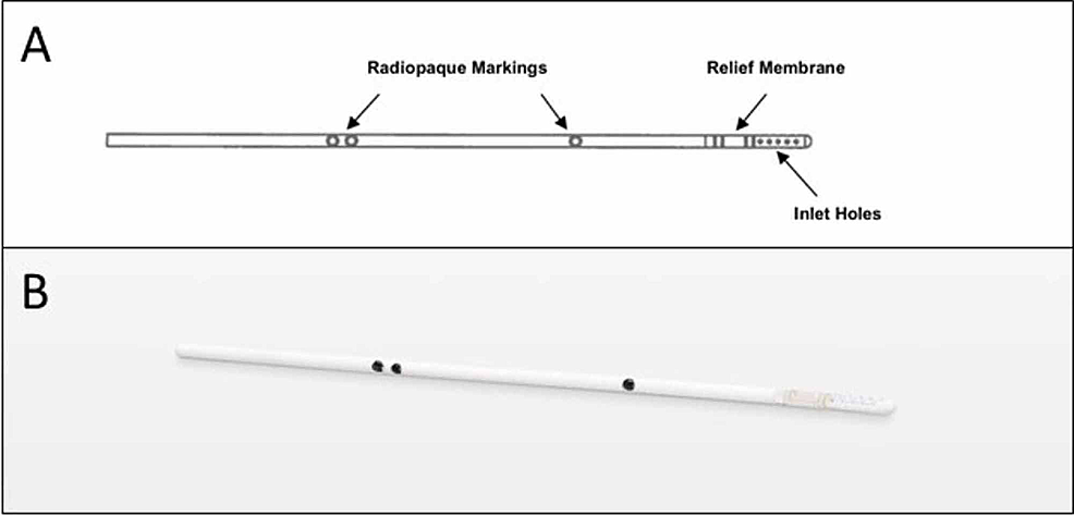 The-Reflow™-ventricular-catheter