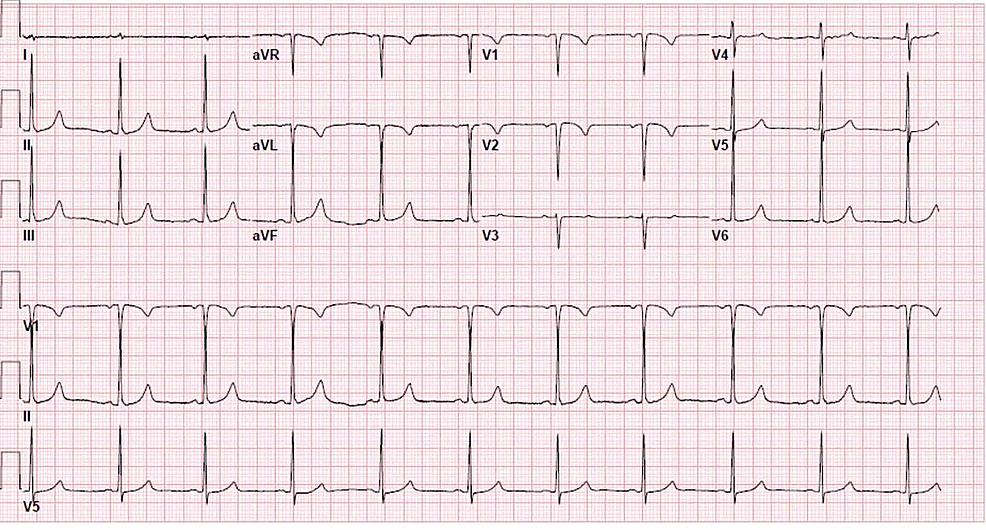 Electrocardiogram-showing-sinus-bradycardia.-