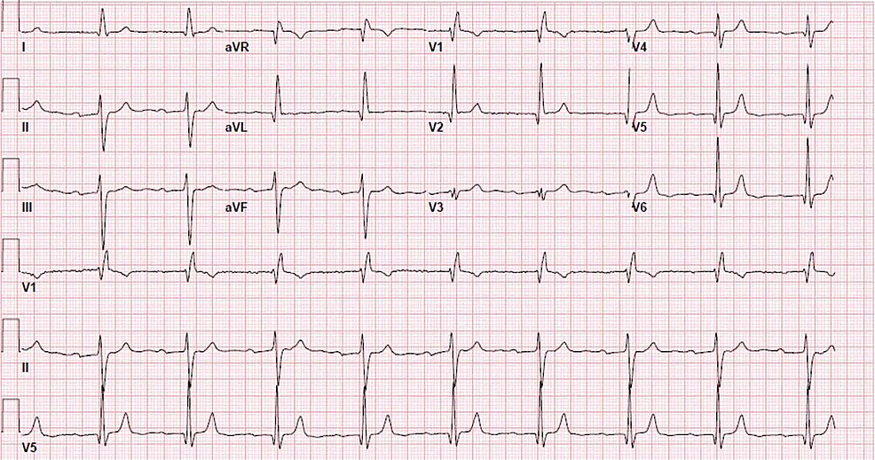 Electrocardiogram-showing-sinus-bradycardia-and-first-degree-atrioventricular-block.-