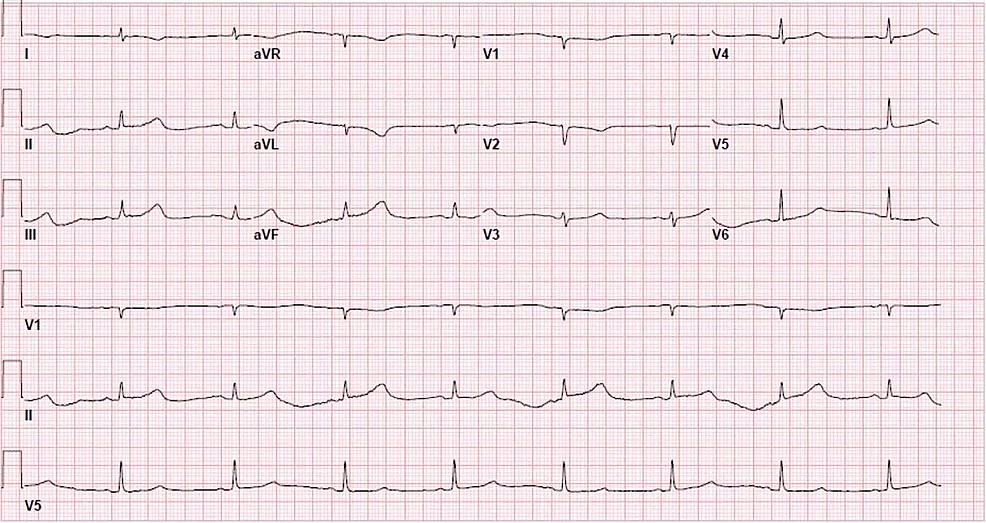 Electrocardiogram-showing-sinus-bradycardia.
