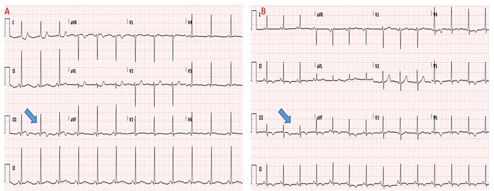 Electrocardiogram-on-presentation-depicting-ST-segment-elevation-in-lead-III-with-reciprocal-ST-segment-depression-in-high-lateral-leads-(A);-resolution-of-ECG-changes-coinciding-with-improvement-of-chest-pain-(B)