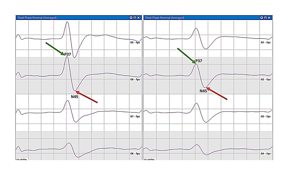 PTN-sensory-mapping.