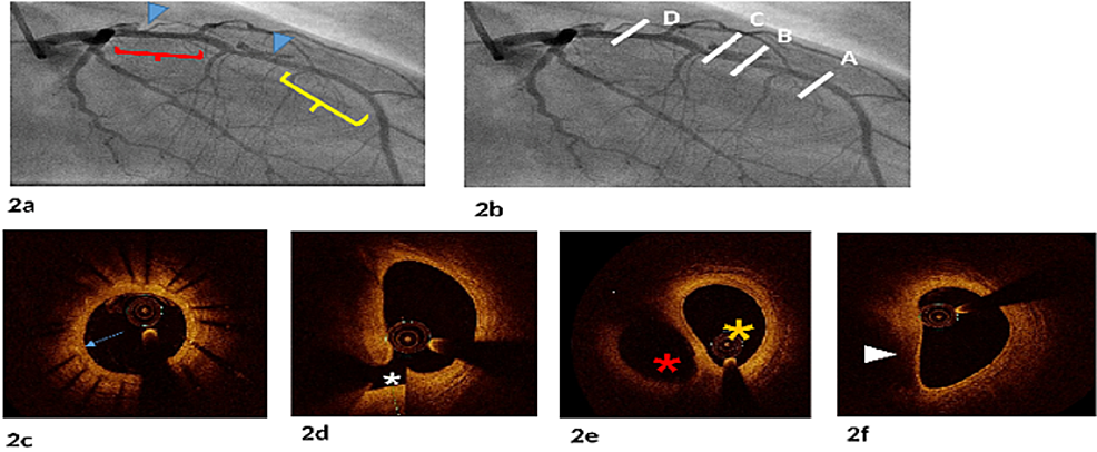 Coronary-angiography-with-the-corresponding-OCT-cross-sections