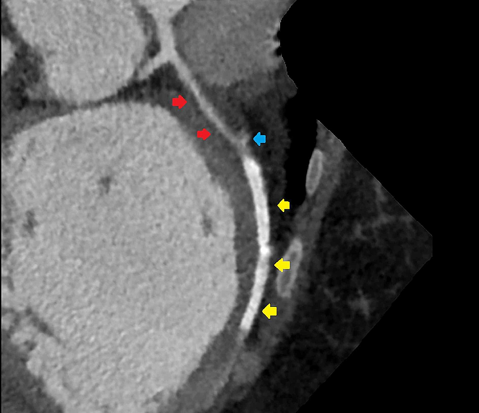 Coronary-computed-tomography-angiography-showing-proximity-of-the-thrombosed-false-lumen-of-dissection-to-origin-of-the-left-main-artery-(red-arrows),-proximal-left-anterior-descending-artery-area-of-true-and-false-lumen-communication-(blue-arrow),-and-mid-left-anterior-descending-artery-stent-(yellow-arrows)