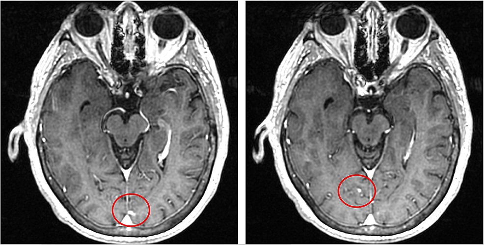 MRI-of-the-brain-showing-multiple-foci-of-superficial-enhancement-in-the-occipital-region-compatible-with-metastatic-disease-(red-circles)