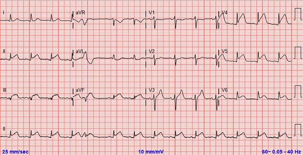 Initial-ECG-