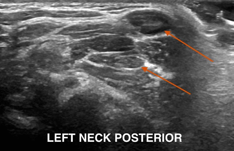 Posterior-cervical-adenopathy