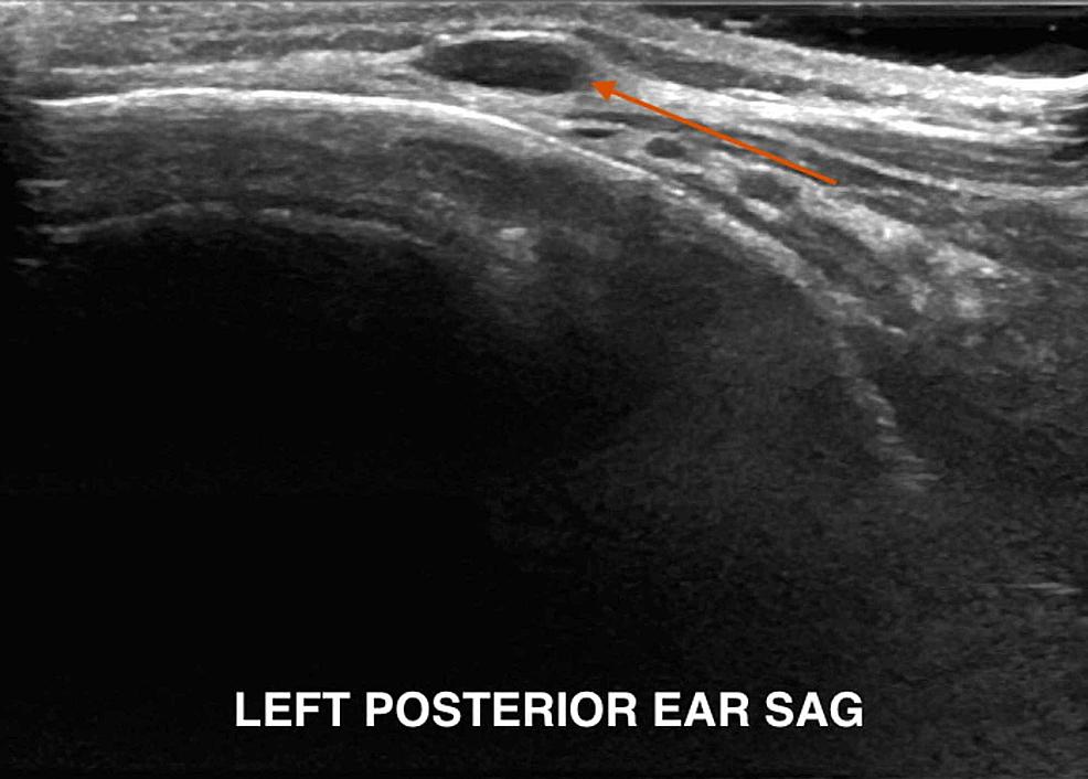 Posterior-auricular-adenopathy