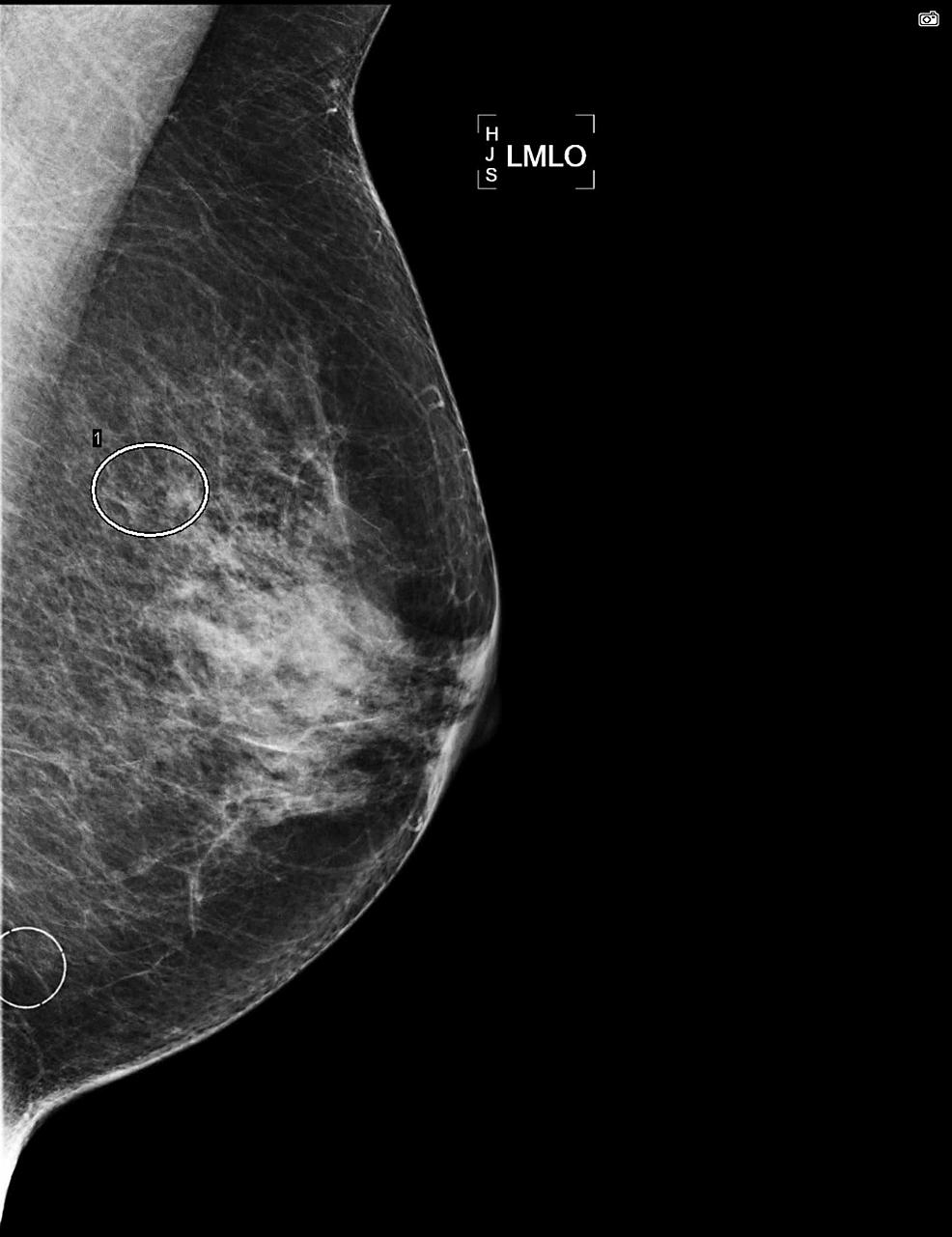 Mammogram-of-left-breast,-MLO-view.