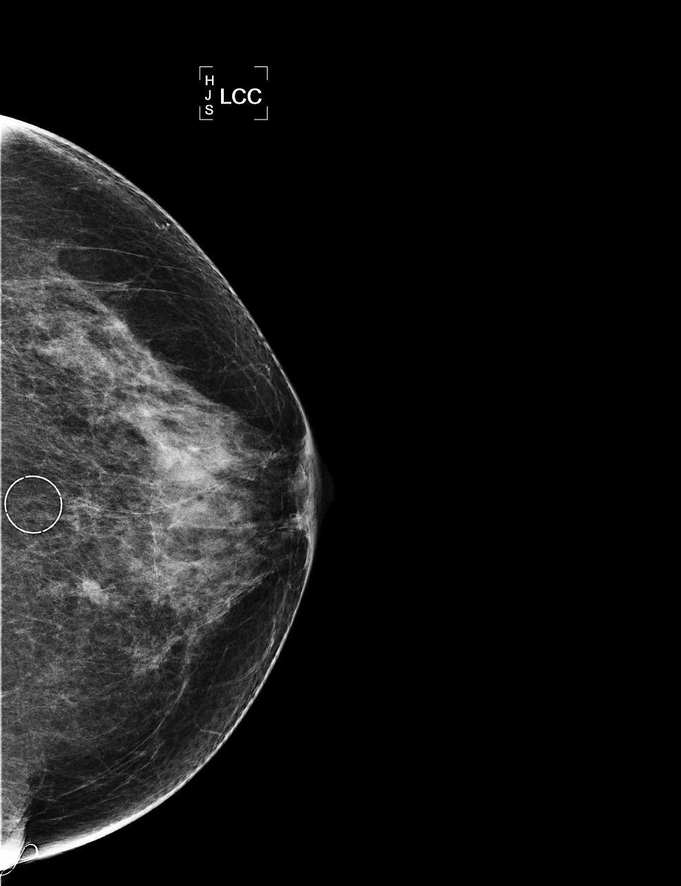 Mammogram-of-left-breast,-CC-view-with-micro-calcifications-circled.