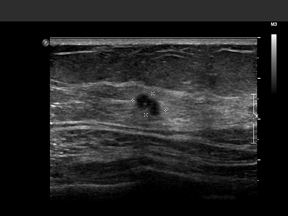 Left-breast-ultrasound-image-of-the-lesion.