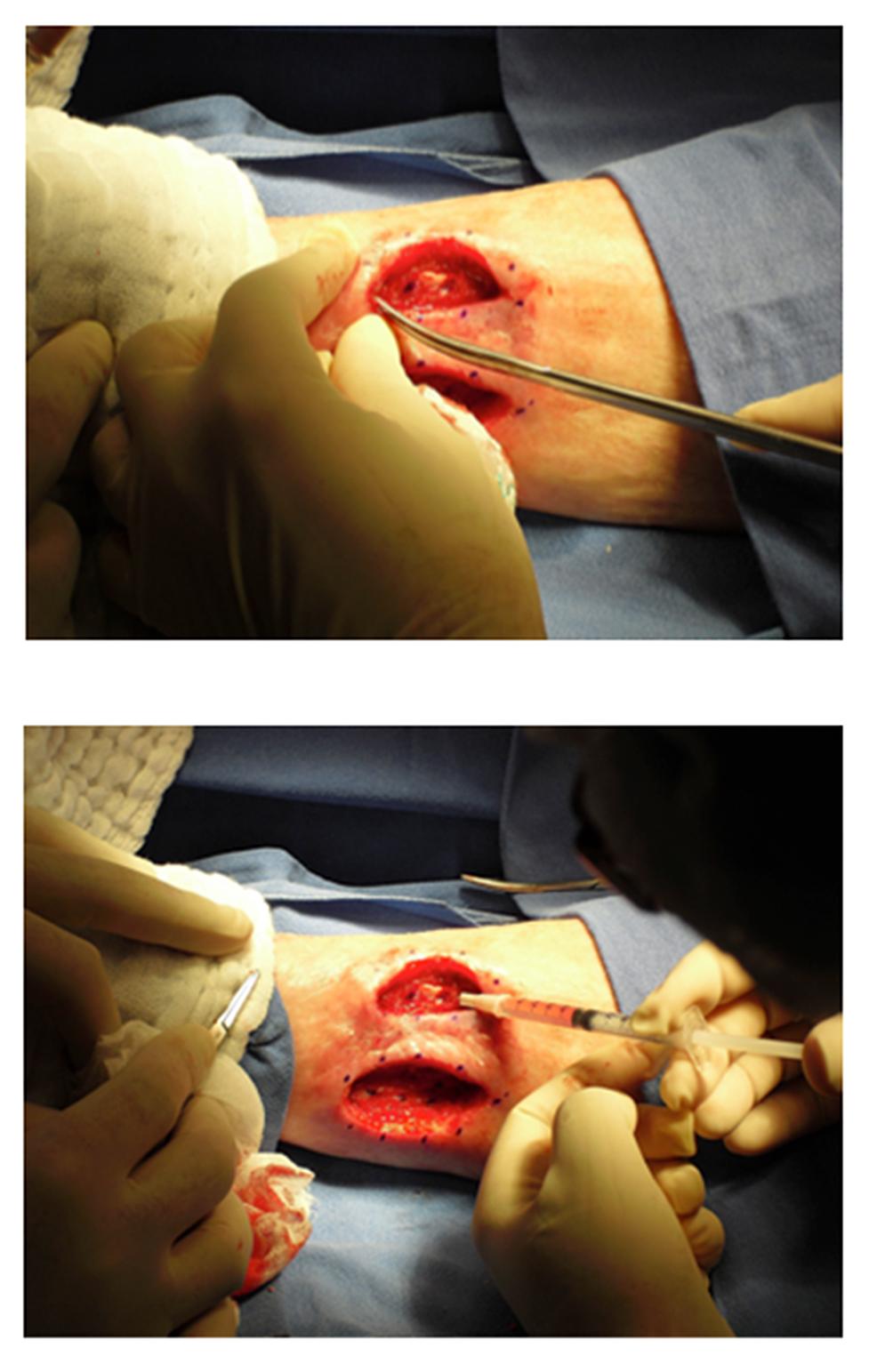 Wound-Debridement-and-Marking