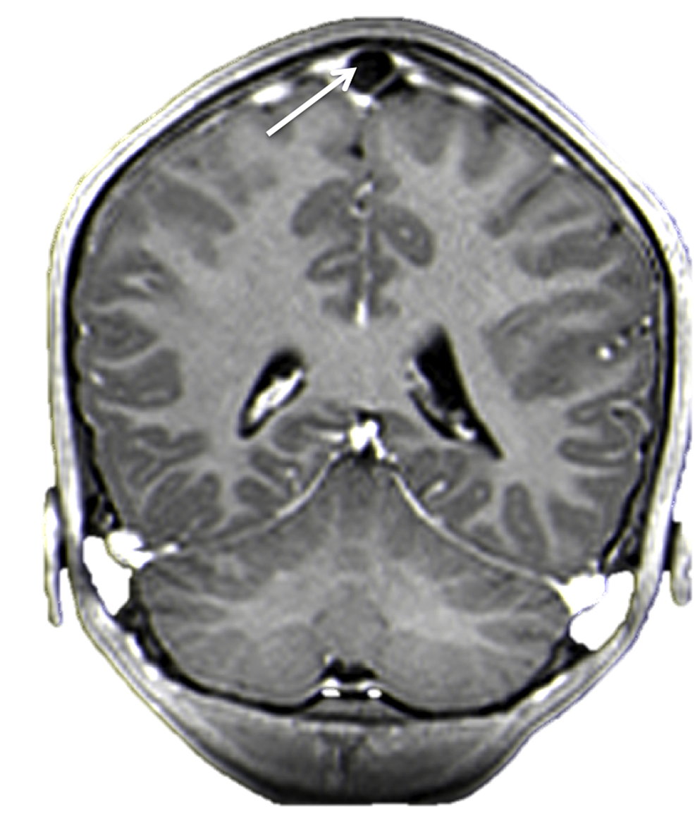 Contrasted-coronal-MRI-of-the-head.-Note-the-large-hypodense-area-(arrow)-within-the-superior-sagittal-sinus.-This-was-diagnosed-as-a-giant-AG.